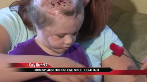 2 year-old dog attack victim back home, family speaks for first time