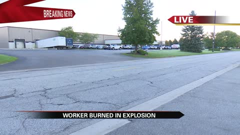 Worker injured in flash fire at Elkhart business