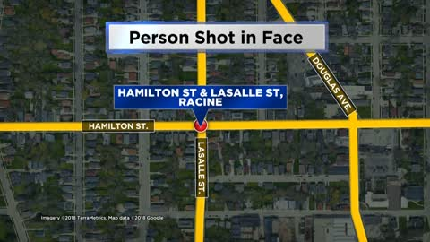 Racine Police looking for information after person shot in the face